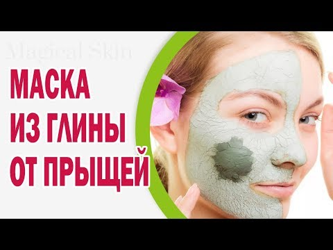 Как вылечить розовые угри на лице
