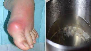 Tratamentul infecțiilor cu helmint de crap