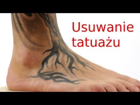 Usuwanie Tatuażu Jak Zakryć Tatuaż Youtube