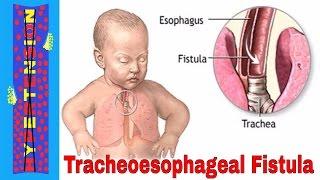 Babies Aspiration Pneumonia   What is Aspiration Pneumonia