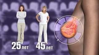 Диагностика рака молочной железы на ранней стадии.