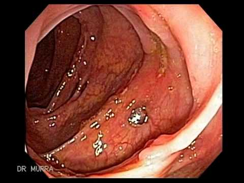 Colonoscopy of Crohn's Disease