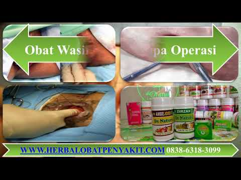 obat-wasir-alami-tanpa-operasi