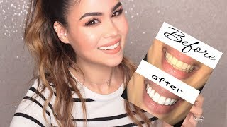 HOW TO: DIY WHITEN TEETH AT HOME IN MINUTES