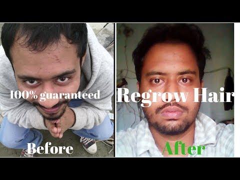 Hair regrow Lifestyle | Diet | Routine