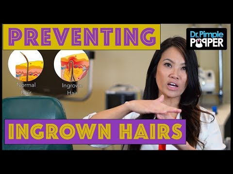 Preventing Ingrown Hairs
