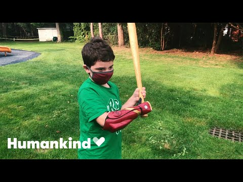 Eight-year-old tries on Iron Man prosthetic arm   Humankind