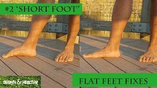 Fix Flat Feet #2