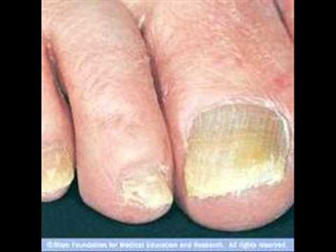 Cures for thick yellow toenails - YouTube