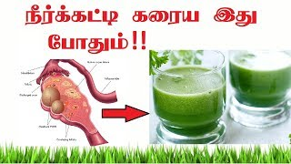 Best Natural Home Remedies for pcos pcod!