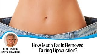 How Much Fat Is Removed During Liposuction? Innovations Medical Texas