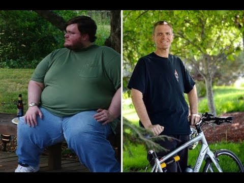 Fundraiser By Kay Cole Medical Costs After 390lb Loss