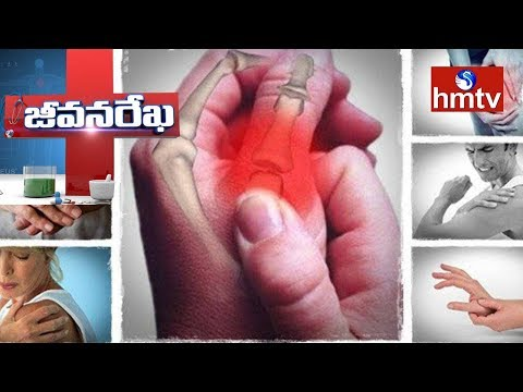 Arthritis Problems & Treatment | Homeocare International | Jeevana Rekha | Health News | hmtv