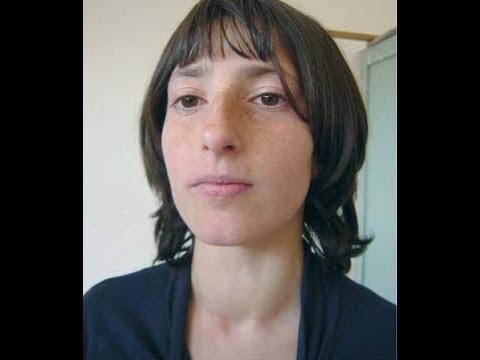 goiter- puberty goiter / physiological goiter - youtube, Cephalic Vein