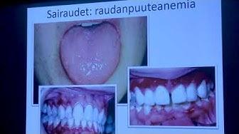 Tyks tutkii ja hoitaa 2.11.2017: Suun limakalvosairaudet - Jaana Rautava