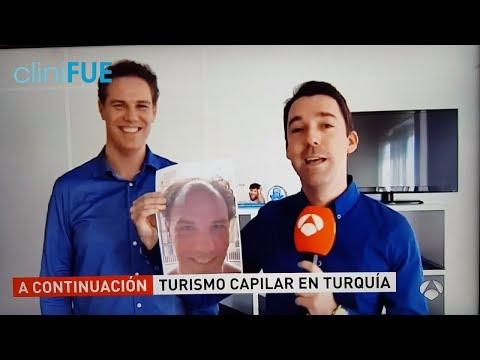 Trasplante de pelo en Turquía Antena 3 NOTICIAS  cliniFUE