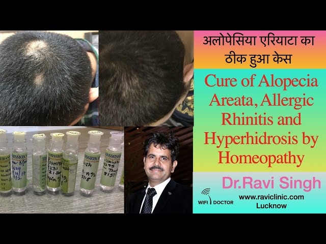 Cure of Alopecia Areata, Allergic Rhinitis and Hyperhidrosis by Homeopathy