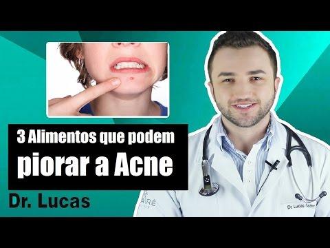 3 Alimentos que podem piorar a Acne - Dr Lucas Fustinoni