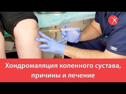 Хондромаляция коленного сустава, причины и лечение