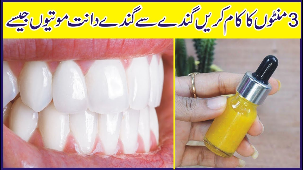 How To Whiten Your Yellow Teeth Naturally At Home | Teeth Whitening Home Remedy