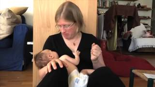 cleft palate breastfeeding