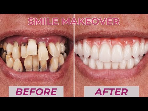 Before & After Smile Makeover Transformations | Cosmetic Dentistry Dental Boutique