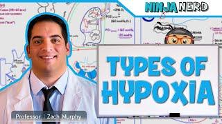 Types of Hypoxia: Hypoxemic   Anemic   Stagnant   Histotoxic