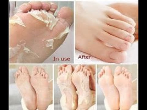 REMOVE DEAD SKIN FROM FOOT | FOOT MASK PEELING CUTICLES | FEET CARE ANTI AGING | ZILOQA