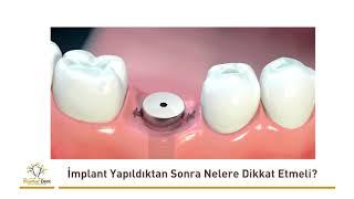 Dental İmplant Yapıldıktan Sonra Nelere Dikkat Etmeli?