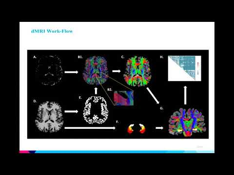 8th Annual TMII Symposium – 2018 – Session I – Neuroimaging – Jack Rutland, BA