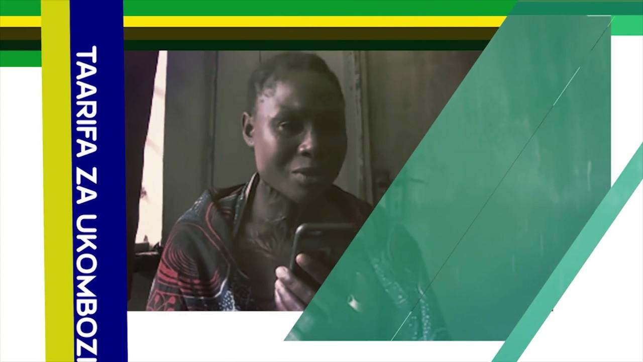 Download Mama aliyeunguzwa na maji ya moto na mumewe agusa pindo la vazi la Magufuli.