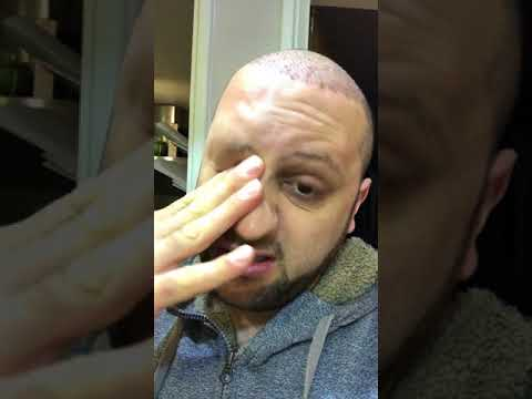 FUE Hair Transplant Day 5