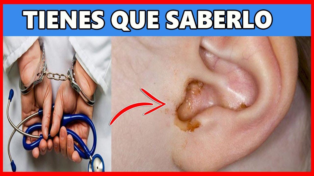 ⚠ Lo que Ocultan los Médicos Sobre Como Limpiar los Oídos, Entérate YA!!!!. ✅