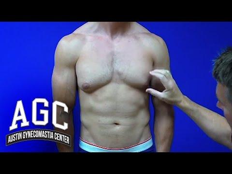 Gynecomastia Treatment Explained - Austin Gynecomastia Center