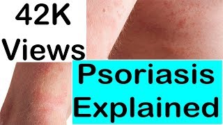 Psoriasis Explained - What Causes Psoriasis and How To Treat Psoriasis !