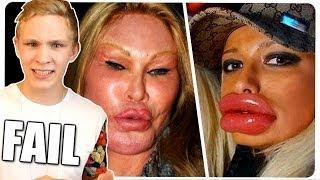 BOTOX FAILS! Schönheits-OP & Plastische Chirurgie Disaster