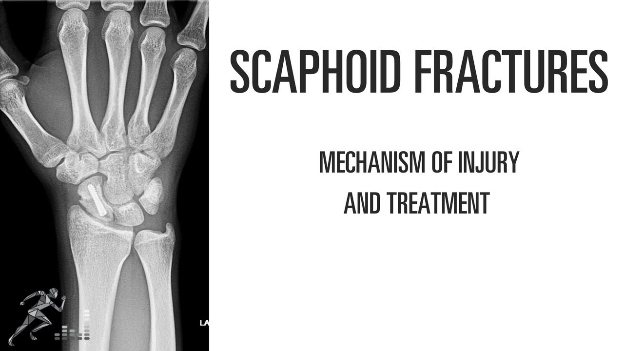 Scaphoid fracture: Mechanism of injury and treatment options of this wrist  injury