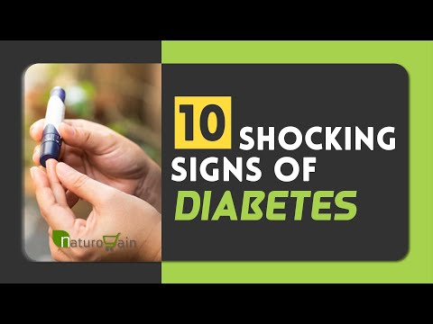 10-shocking-signs-that-your-blood-sugar-level-is-high