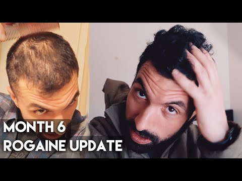 6-month-rogaine-results-(minoxidil)