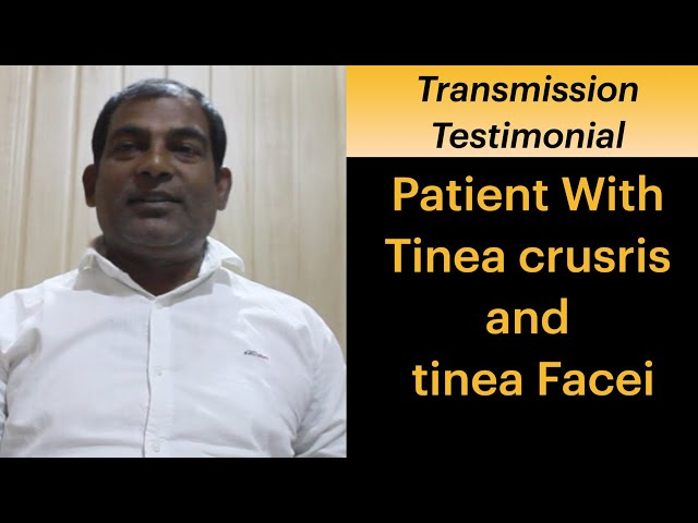 Patient completely got cured from tinea corporis, tinea faciei & tinea cruise in 4 months