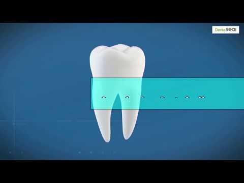 Denta Seal recensione, come funziona e dove può comprare