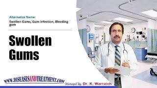 Swollen Gums : Causes, Diagnosis, Symptoms, Treatment, Prognosis
