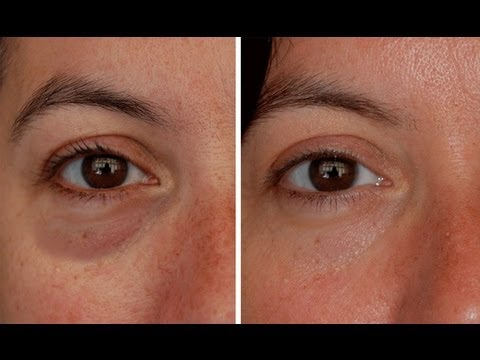 How To Make Eye Bags Vanish In Seconds