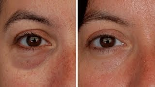 How To: Make Eye Bags Vanish In Seconds! Full Demo!