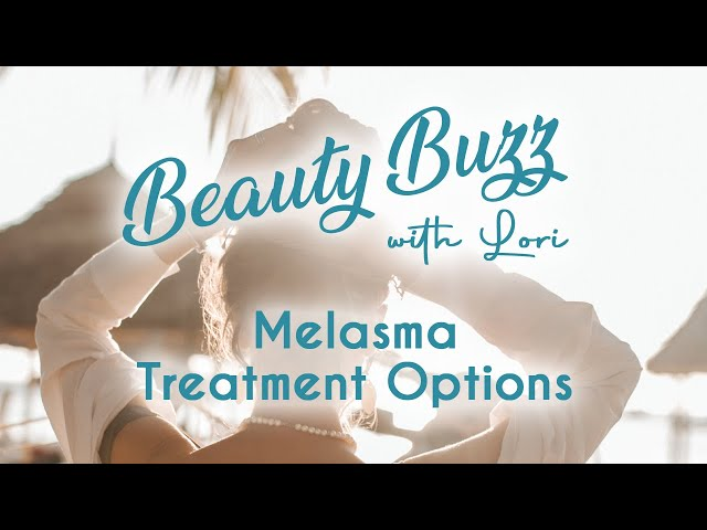 Melasma Treatment Options