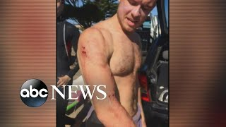 Surfer punches shark in face to escape attack