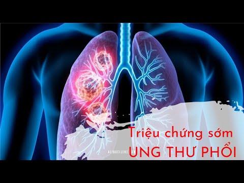 10 dấu hiệu cảnh báo sớm bệnh ung thư phổi