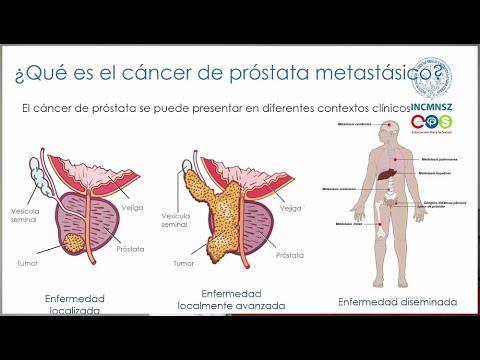enfermedad metastásica del cáncer de próstata