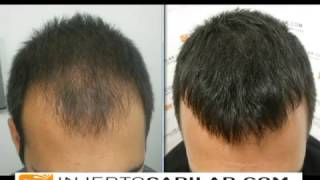 1525 fu s hair transplant by fue technique injertocaplar com 377 2010