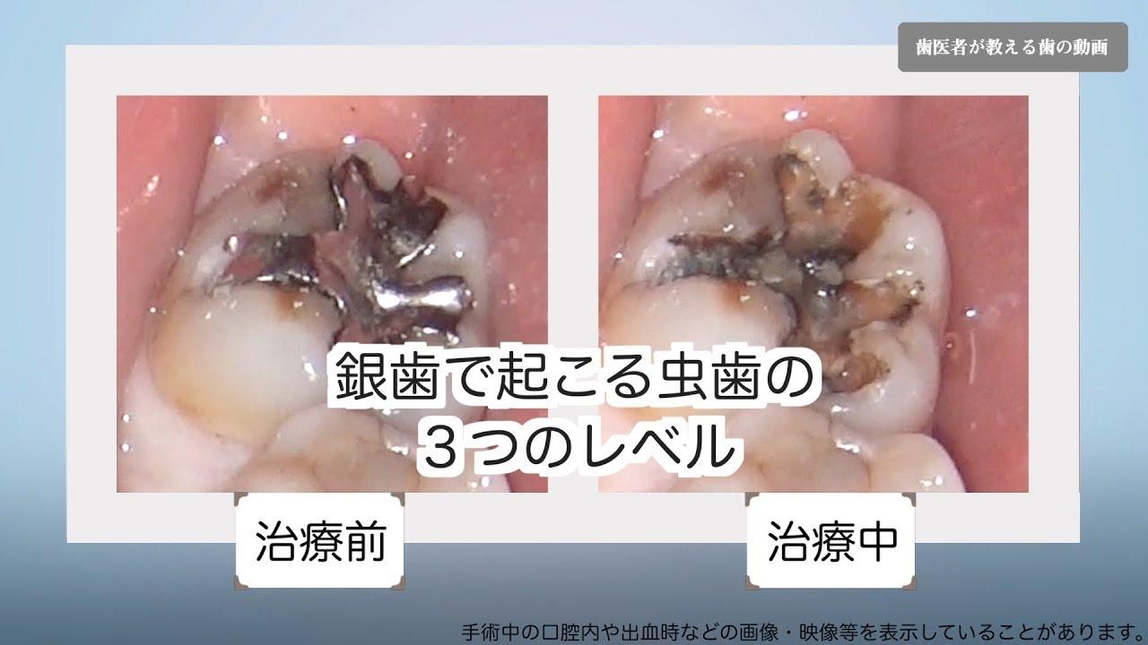 匂い 虫歯 の その口臭……虫歯の詰め物が原因ではありませんか? [歯のホワイト二ング・口臭対策]